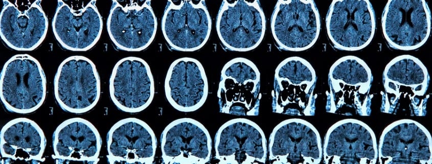 MRI scan of the human brain - medical concepts